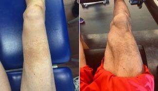 Sergi Vidal muestra su increíble recuperación y firma con el Manresa